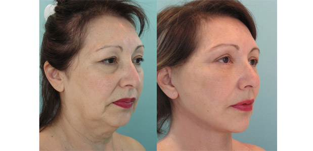 5 Point Face Lift