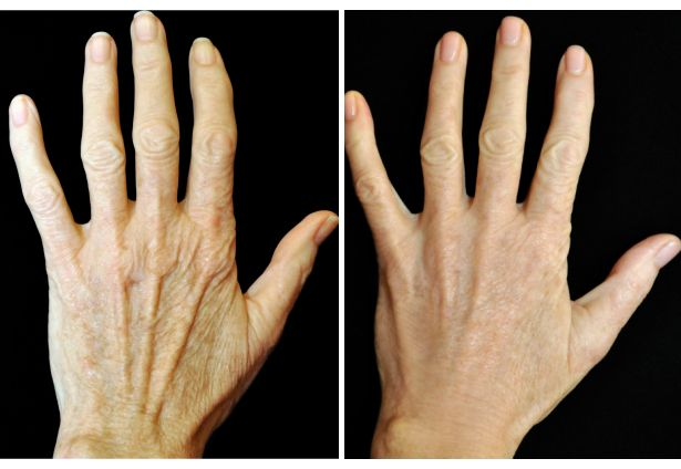 Hand Ageing and Loss of Volume