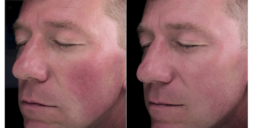 Redness and Rosacea