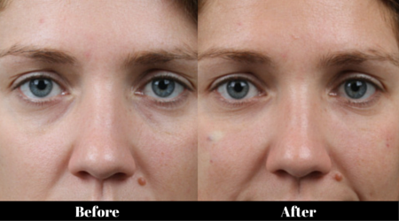 Tear Trough and Eye Bag Correction