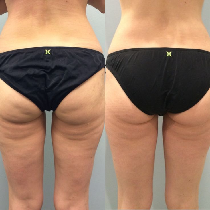 UltraShape and VelaShape Body Countouring(Non-Surgical Liposuction)